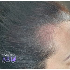 Scalp tattoo